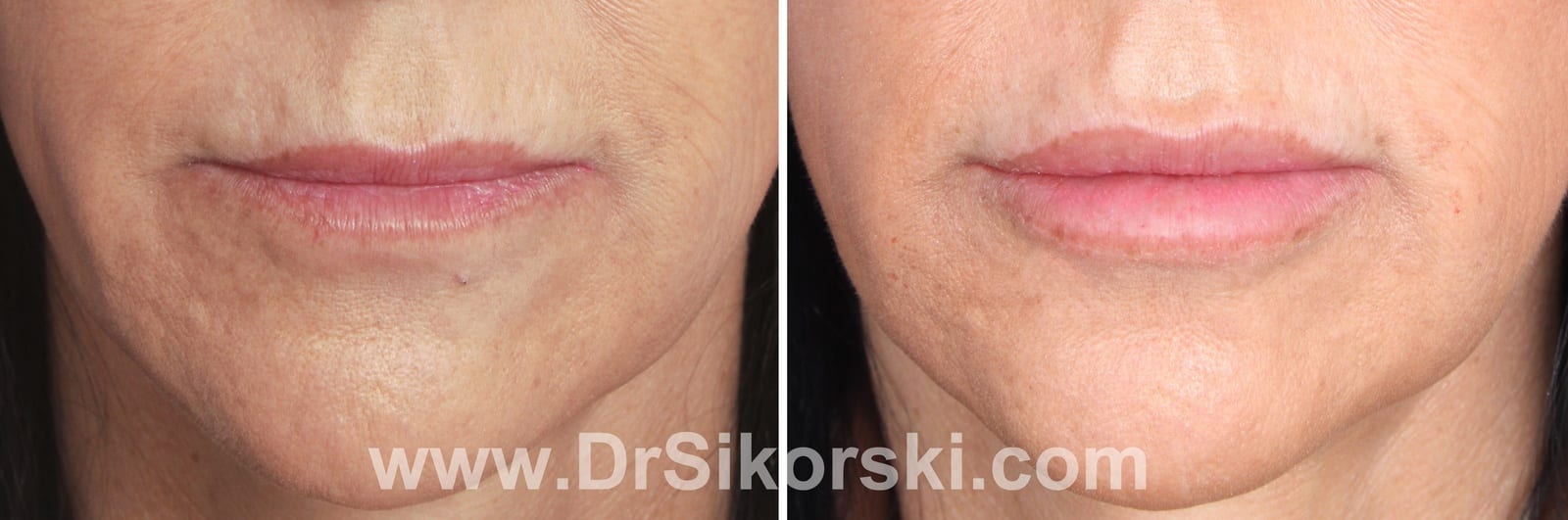 Restylane Orange County Before and After Patient B