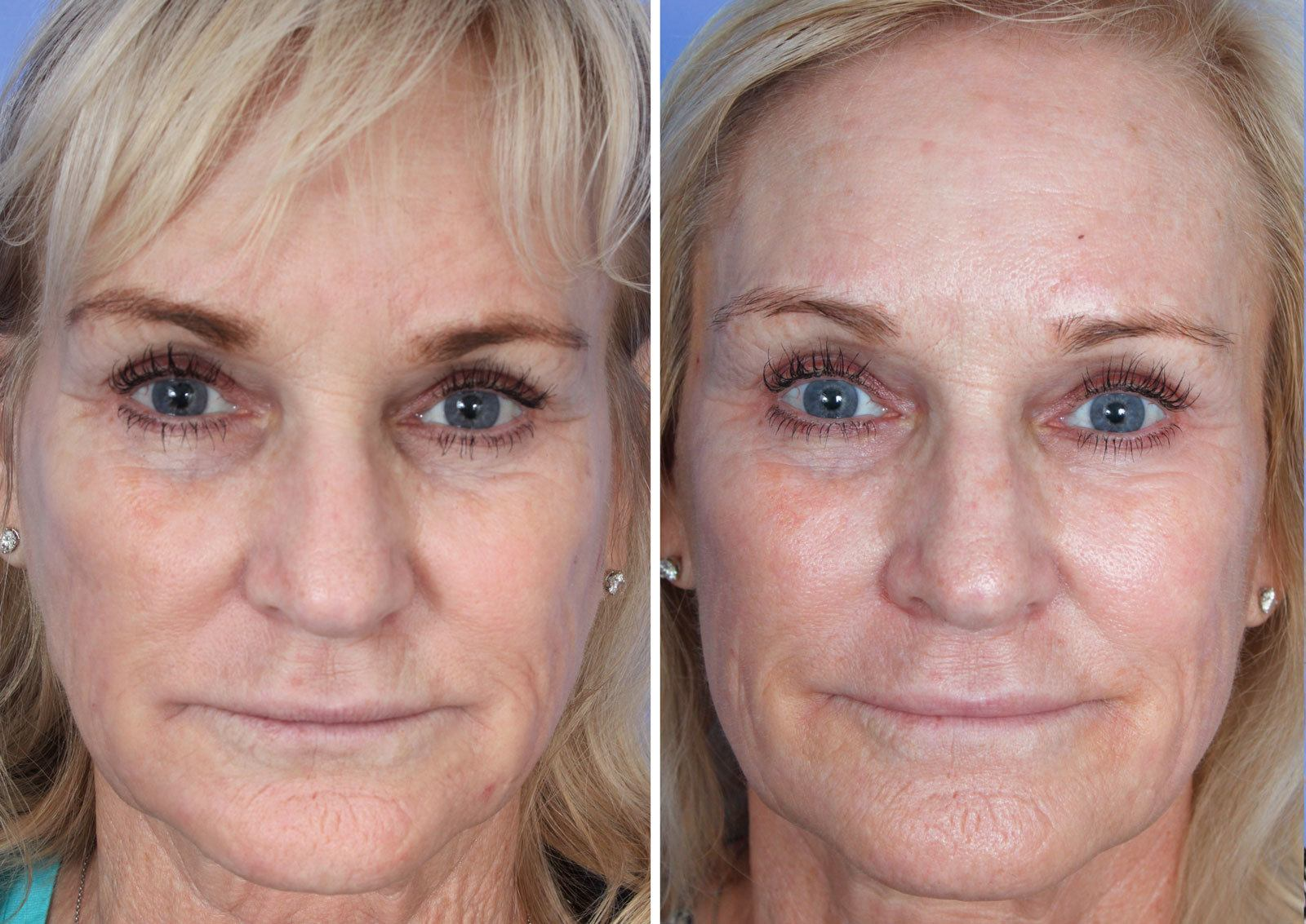 Sculptra Mission Viejo Before and After Patient F