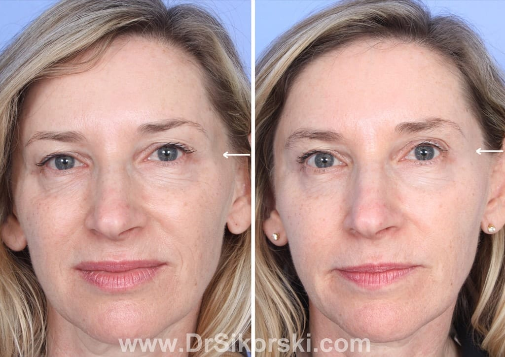 Sculptra Mission Viejo Before and After Patient G