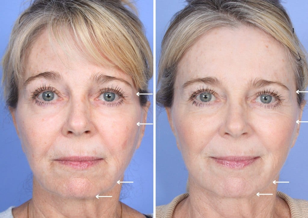 Sculptra Orange County Before and After Patient B