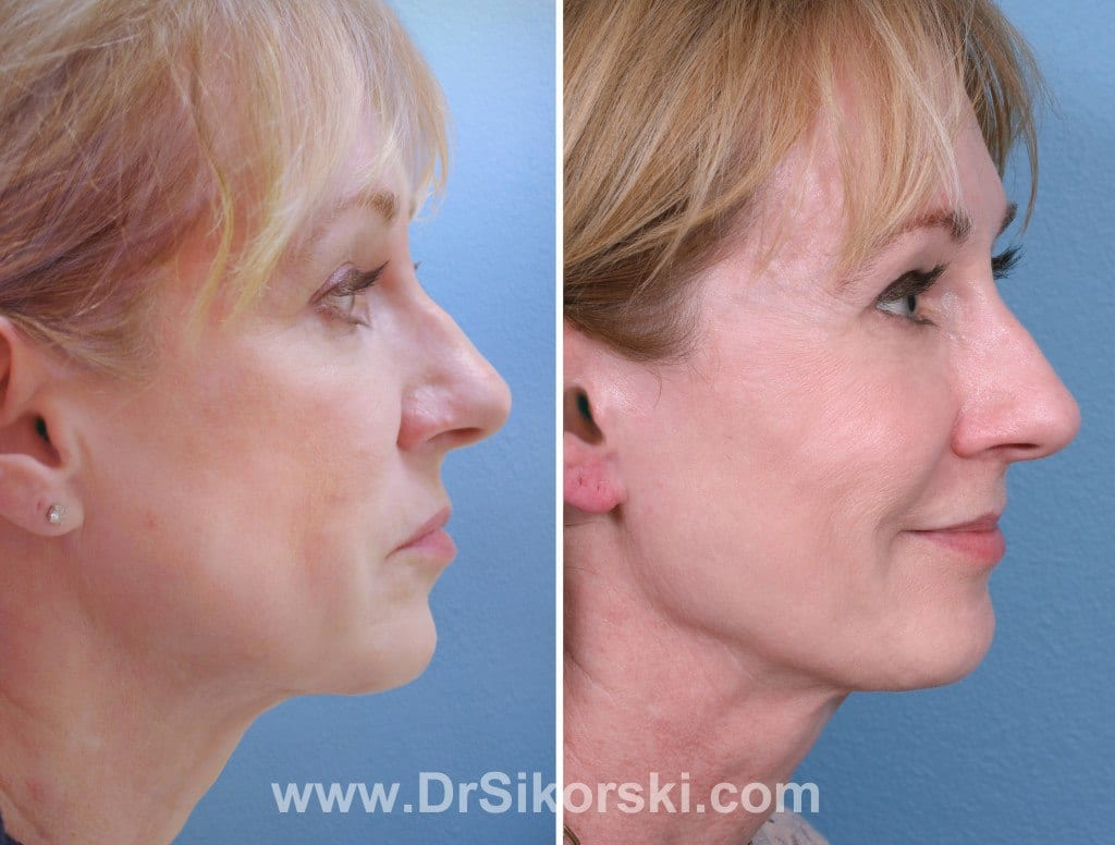 Sculptra Orange County Before and After Patient C
