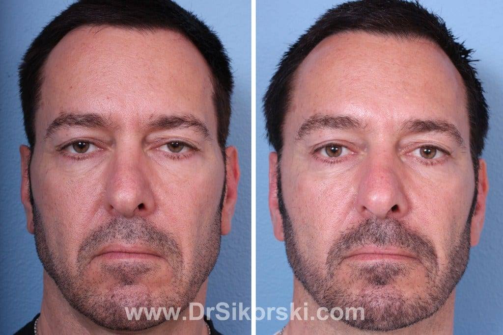 Sculptra Orange County Before and After Patient D
