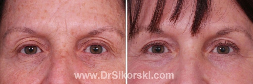 Silikon Mission Viejo Before and After Patient E