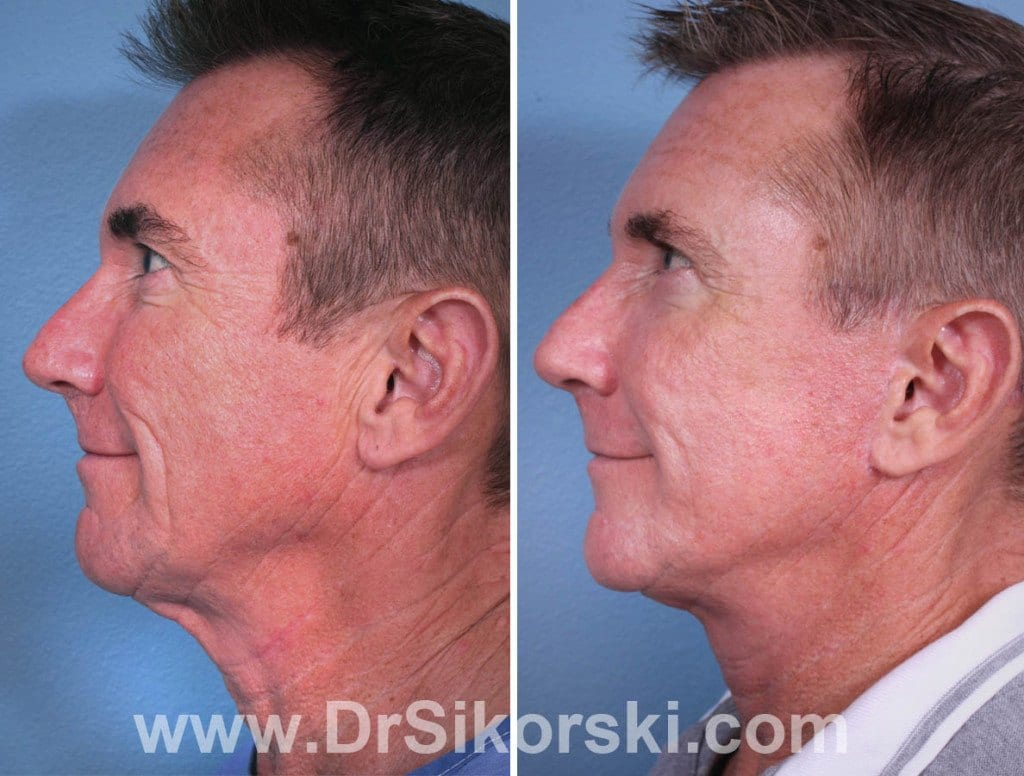 Silikon Orange County Before and After Patient A1
