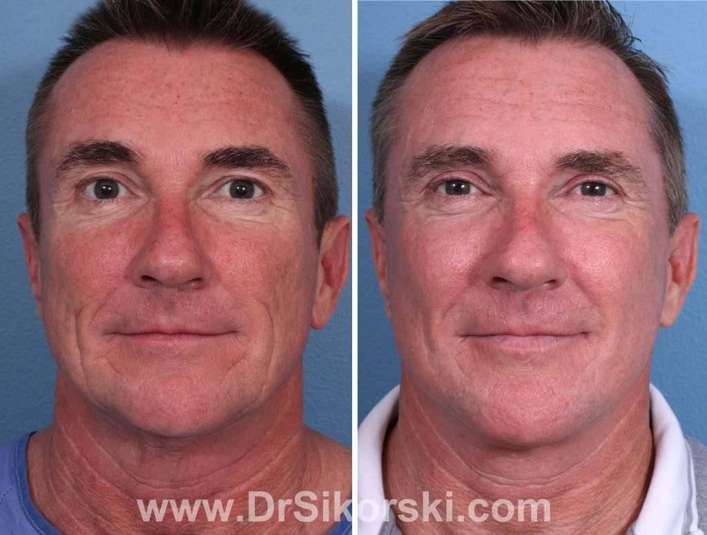 Silikon Orange County Before and After Patient A