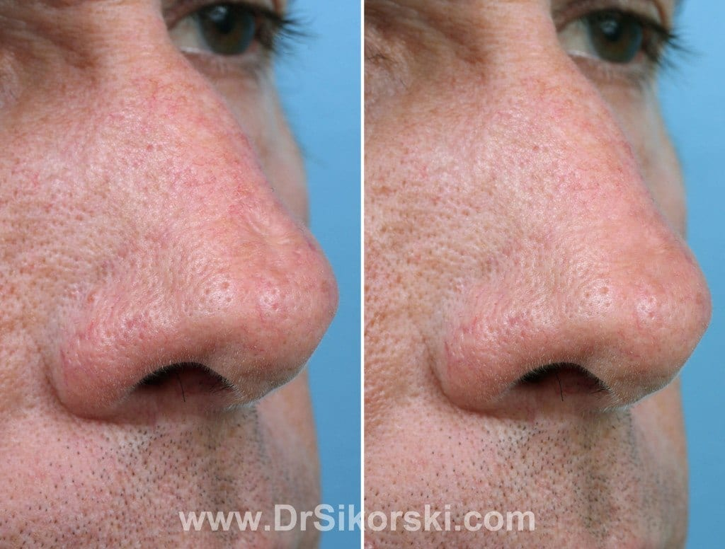 Silikon Orange County Before and After Patient B