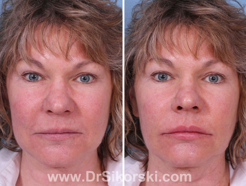 Silikon Orange County Before and After Patient C