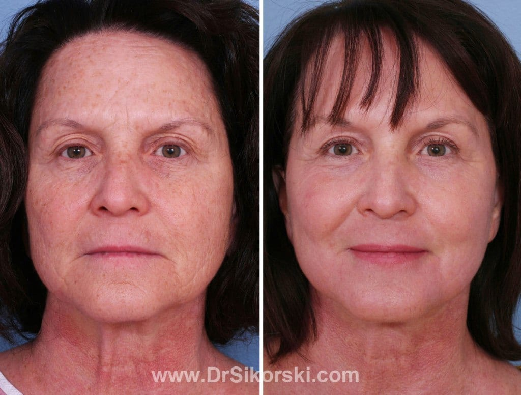 Silikon Mission Viejo Before and After Patient D