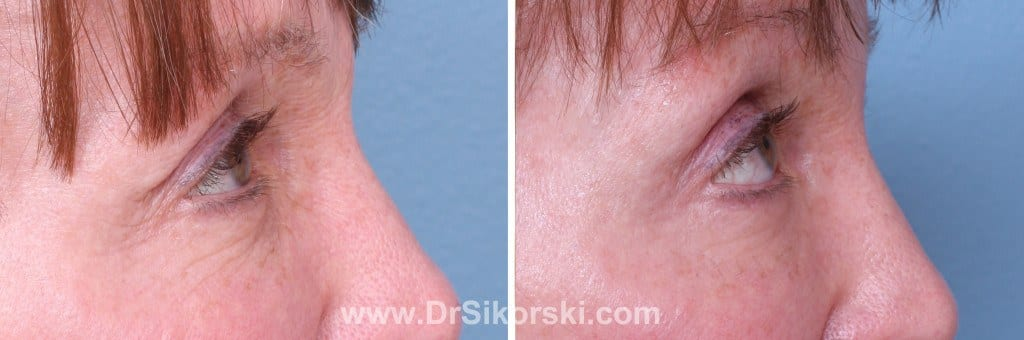Thermage Mission Viejo Before and After Patient F