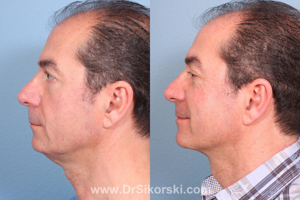 Thermage Mission Viejo Before and After Patient G