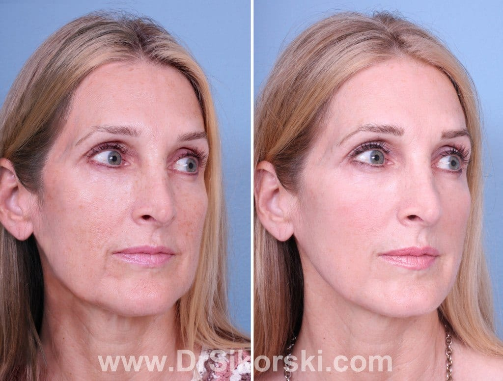 Thermage Orange County Before and After Patient A1