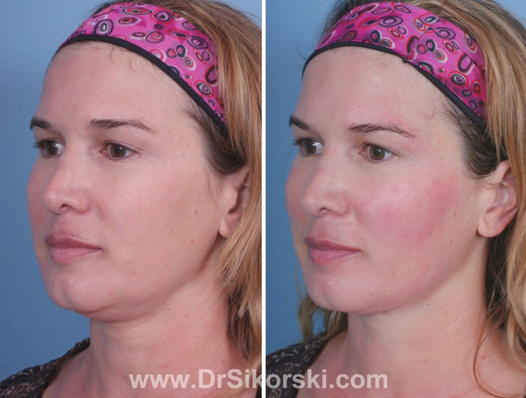 Thermage Orange County Before and After Patient D