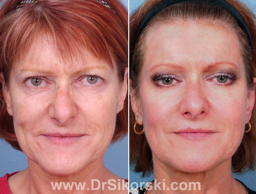 Thermage Orange County Before and After Patient E