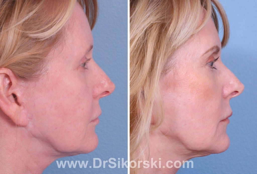 Ultherapy Mission Viejo Before and After Patient C