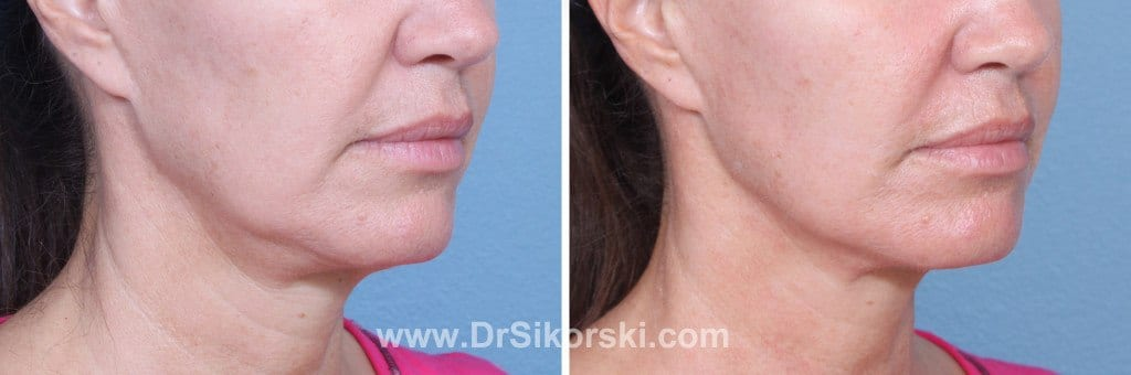 Ultherapy Mission Viejo Before and After Patient D