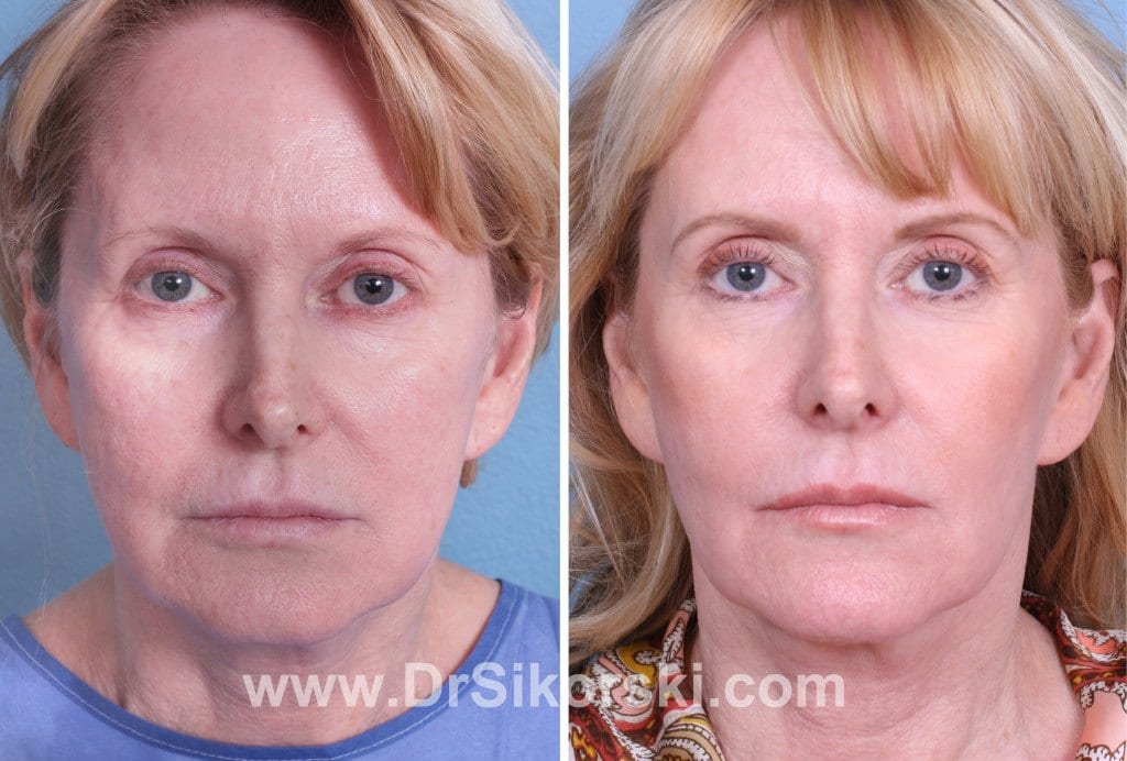 Ultherapy Mission Viejo Before and After Patient E
