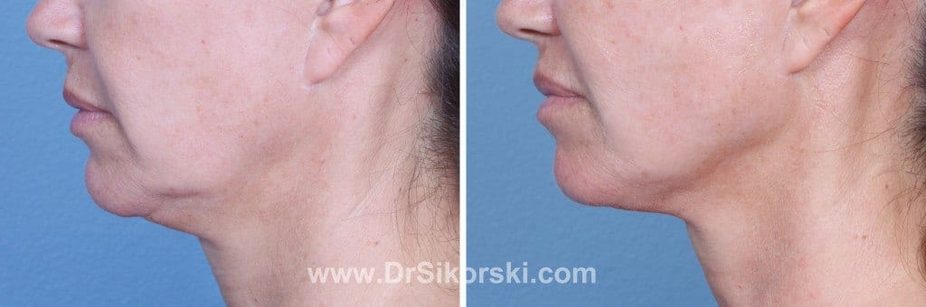 Ultherapy® Before and After Patient A1 1