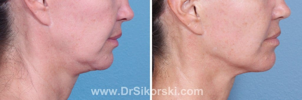 Ultherapy Orange County Before and After Patient A