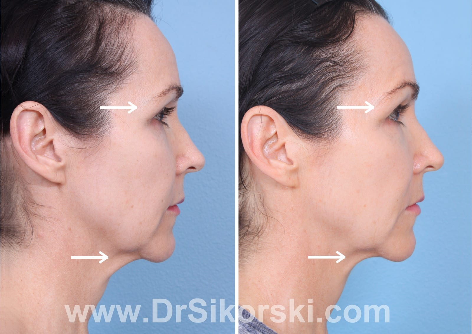 Ultherapy Orange County Before and After Patient B