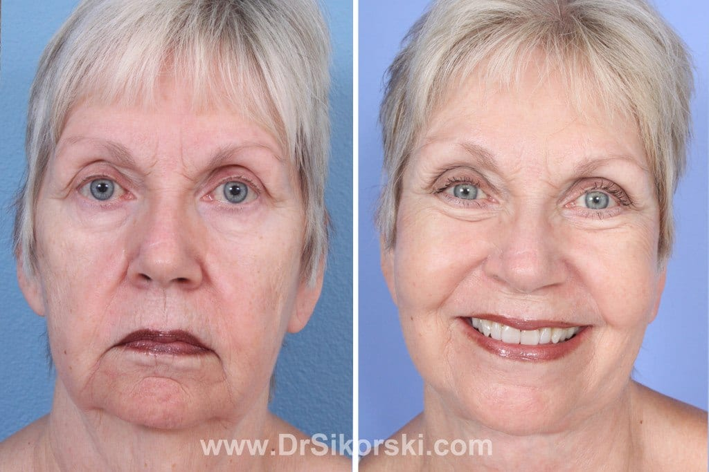 VBeam Mission Viejo Before and After Patient F