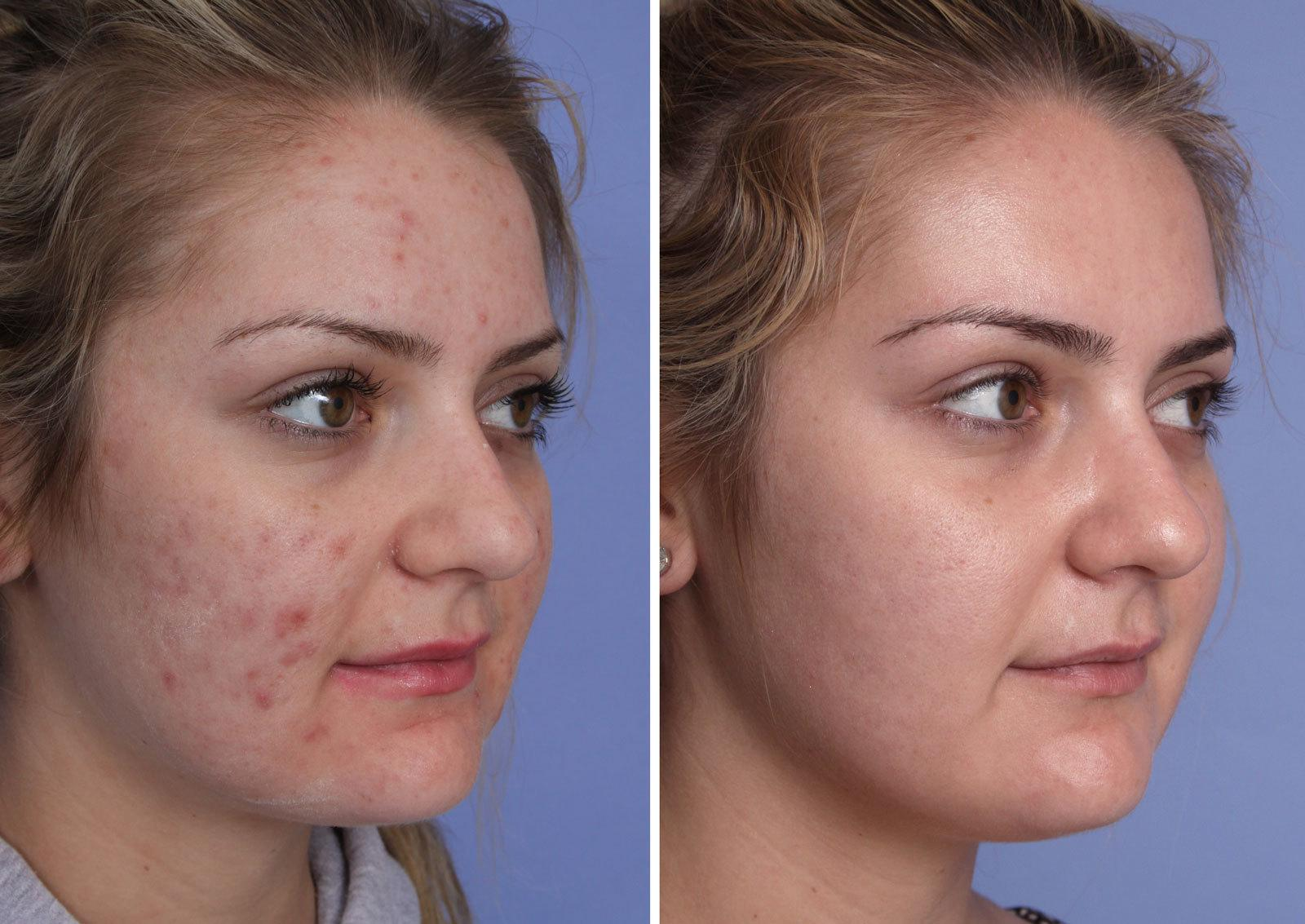 VBeam Orange County Before and After Patient A1