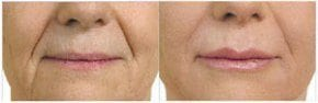 Top 5 Things You Should Know Before Injectables Before and After Photo