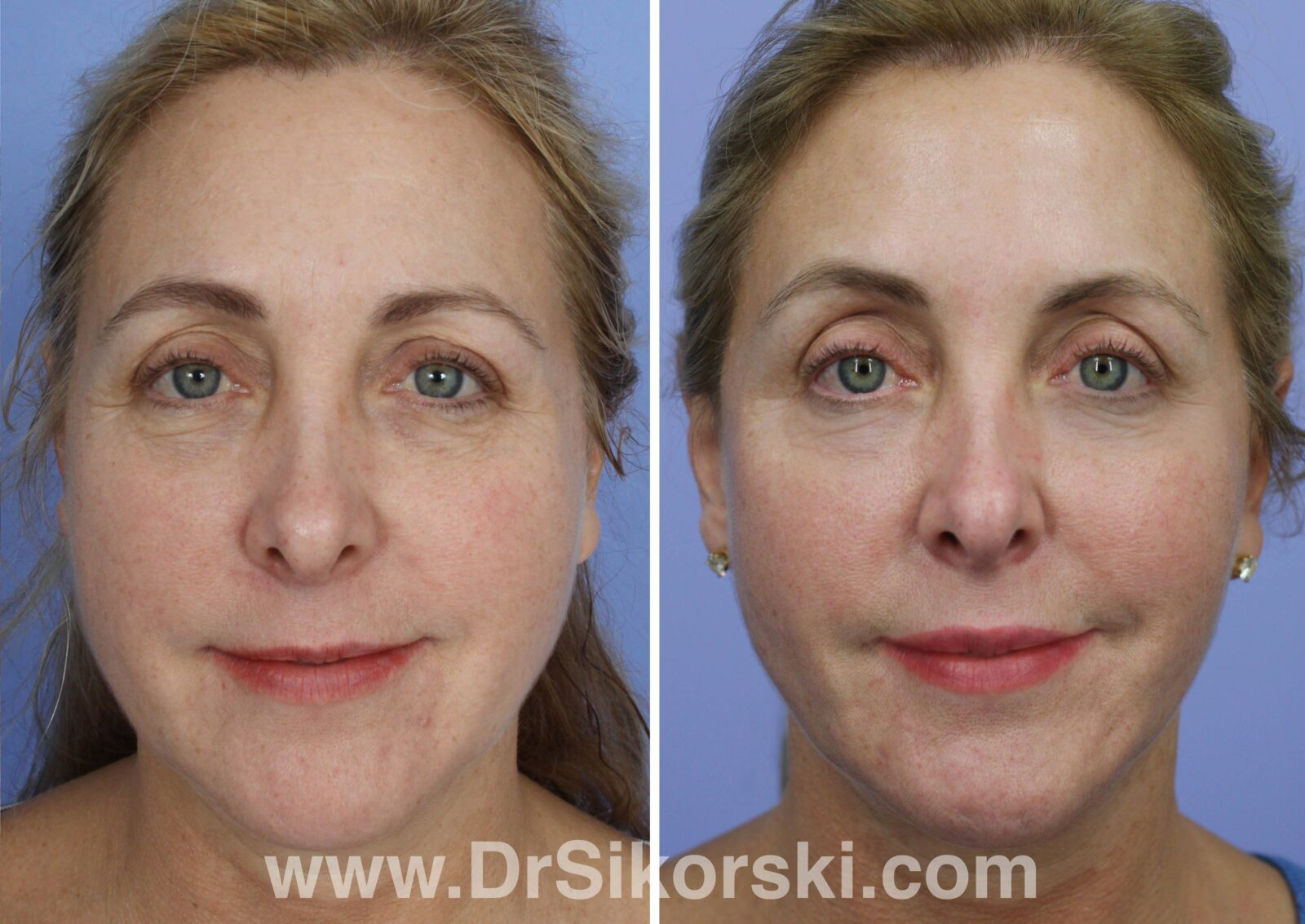 Volbella Before and After Patient A