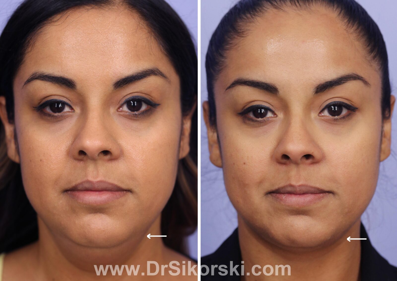 Kybella Before and After Patient J