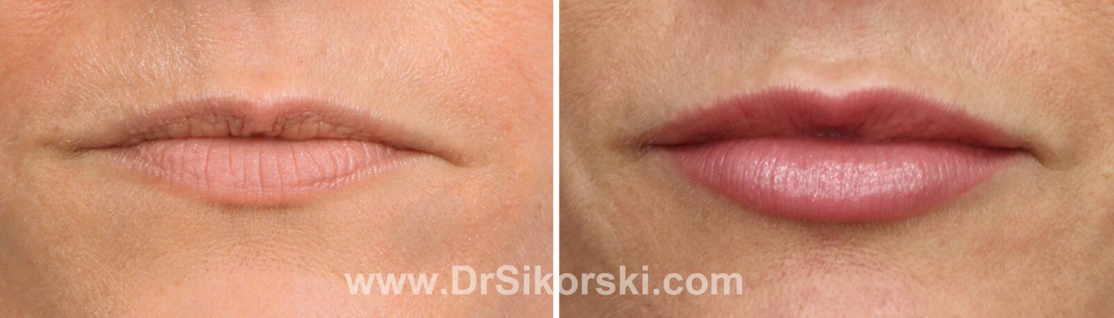 Restylane-Silk Before and After Patient J