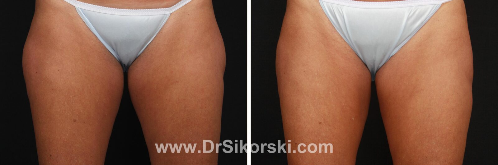 CoolSculpting Mission Viejo Thigh Before and After Patient K
