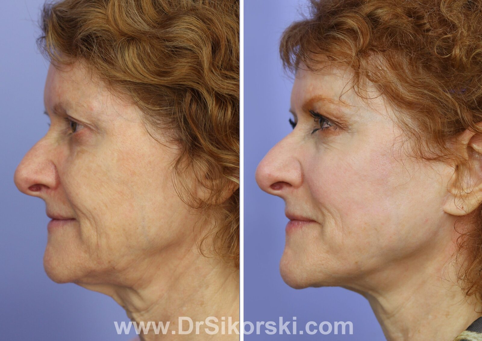 Facelift Thulium Before and After of Red Head Female Patient H Side View