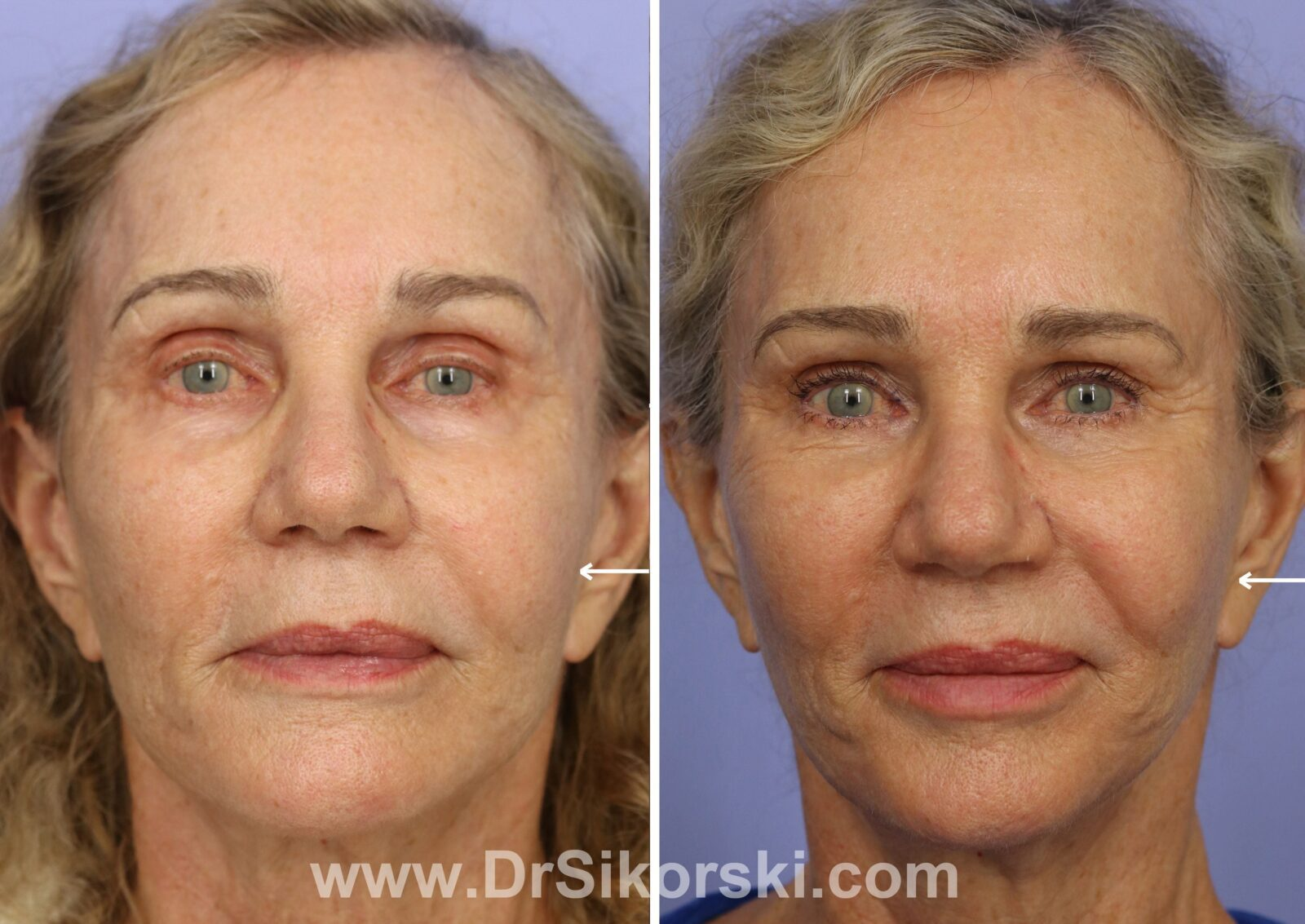 juvederm restylane and perlane before and after Patient K