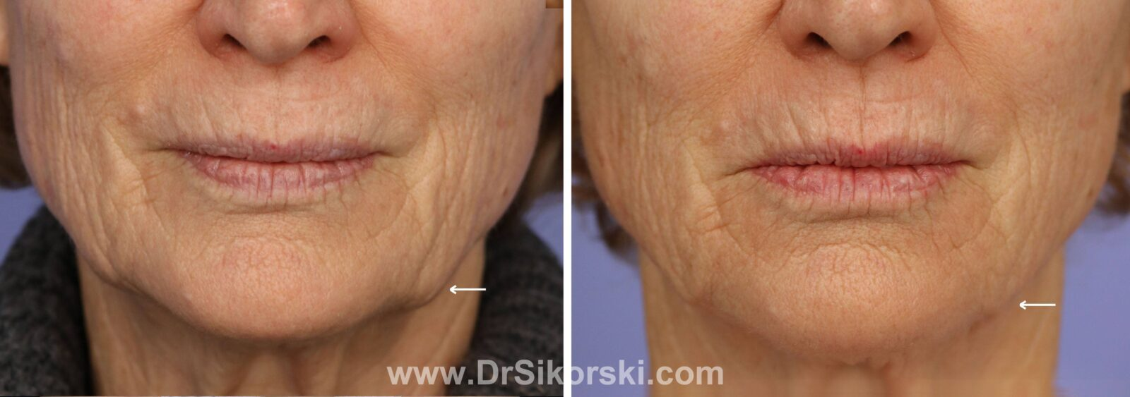 Kybella Before and After of Mature Female Patient