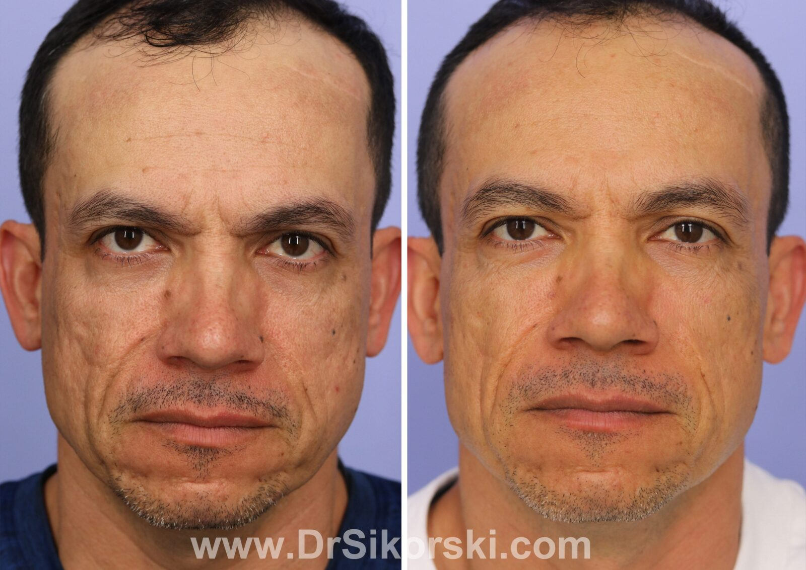 Sculptra Before and After Male Patient H