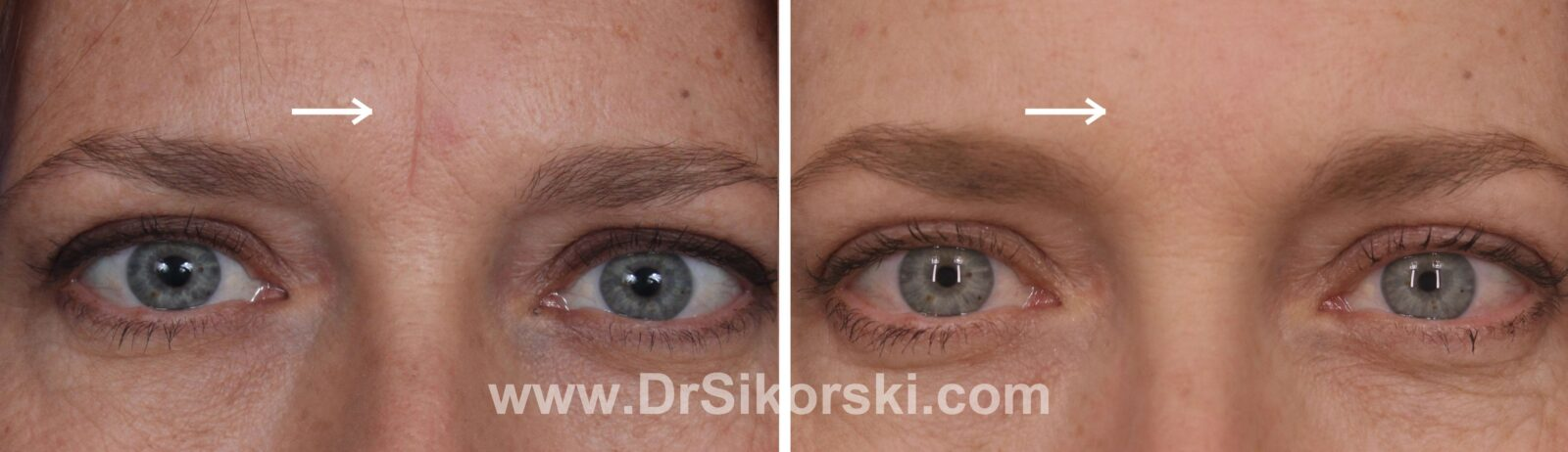 Silkon Glabella Before and After Patient G