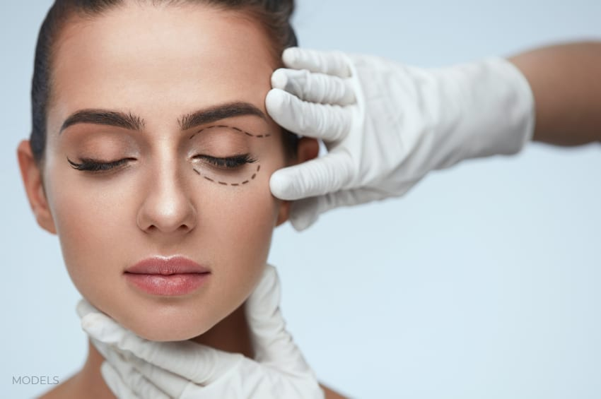 Female Model With Eyes Closed Showing Cut Lines for Blepharoplasty