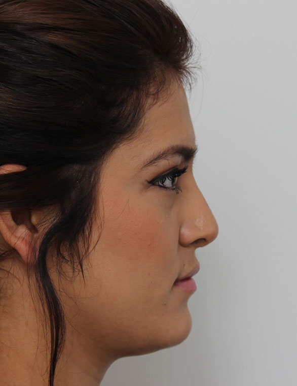 Front Page After Rhinoplasty Patient