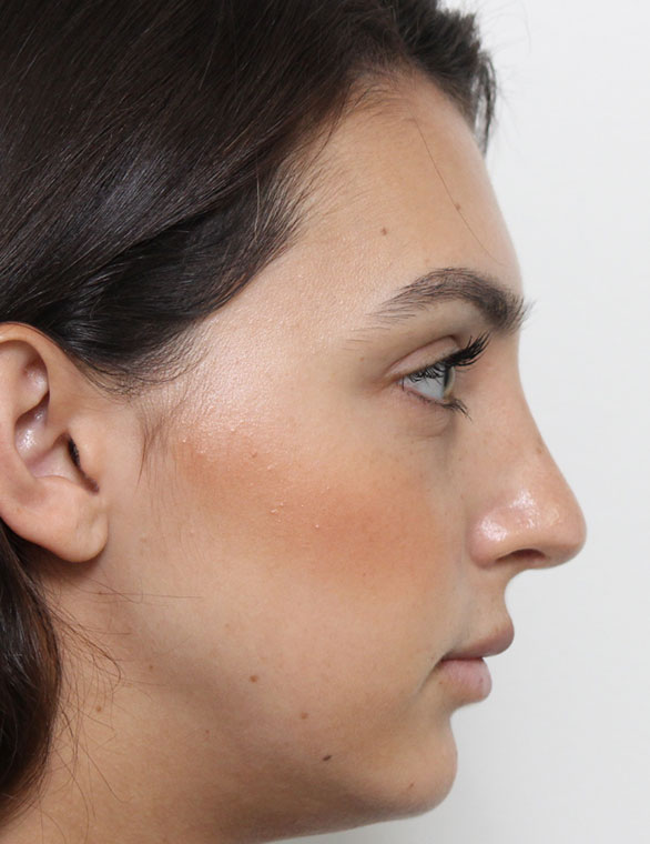 Rhinoplasty After Patient D