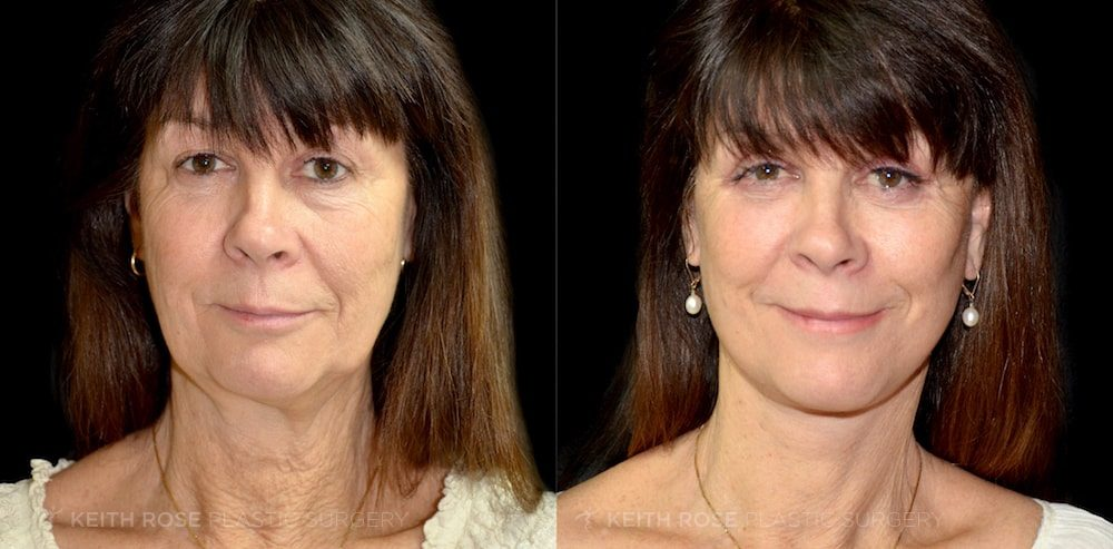 Patient 1 Facelift Before and After