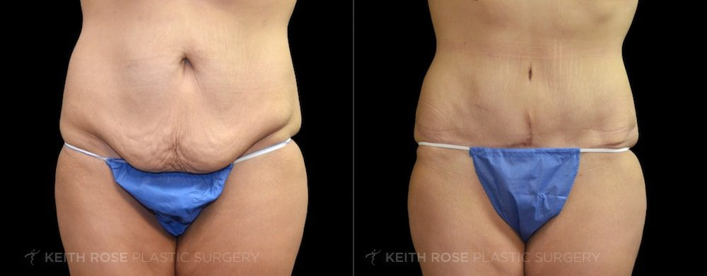 Patient 12 Tummy Tuck Before and After