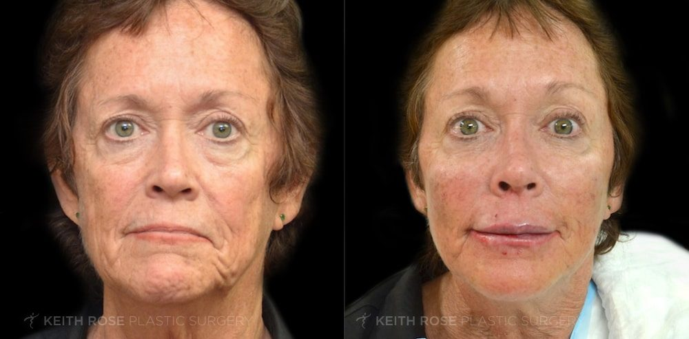 Patient 1 Dermal Fillers Before and After
