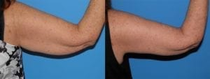 Patient 1a Arm Lift Before and After
