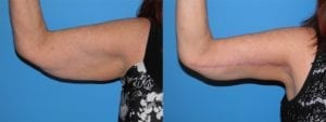 Patient 1b Arm Lift Before and After
