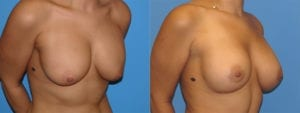 Patient 1b Breast Capsules Before and After