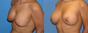 Patient 1c Breast Capsules Before and After