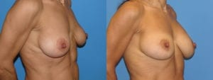 Patient 3b Breast Capsules Before and After