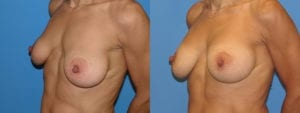 Patient 3c Breast Capsules Before and After