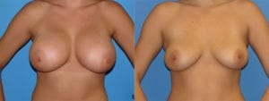Patient 1a Implant Removal Before and After