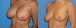 Patient 1b Implant Removal Before and After