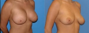 Patient 1c Implant Removal Before and After